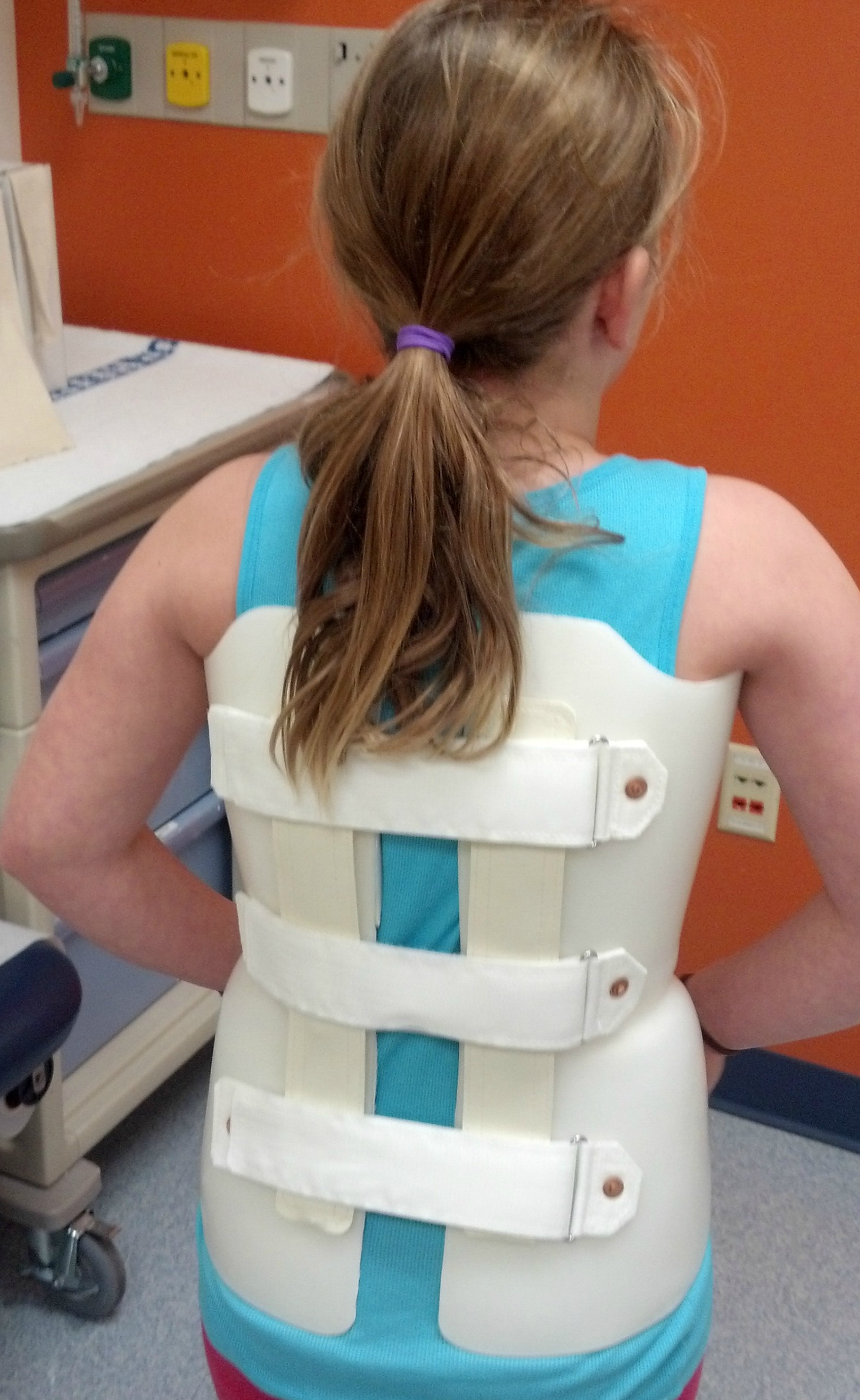 scoliosis different doctors Schroth therapy today is an evidence-based method of physical rehabilitation for scoliosis and other spinal deformities  the schroth best practice academy board,.